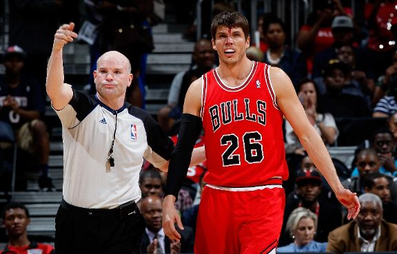 Chicago-Bulls-v-Atlanta-Hawks-kyle-korver-injured-wallpaper-wp5205160